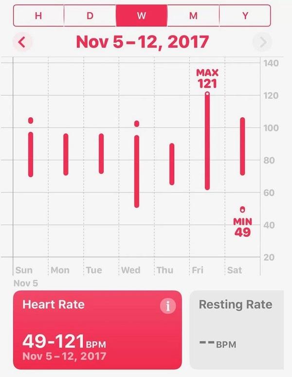 Apple Watch спасли жизнь парню после сердечного приступа